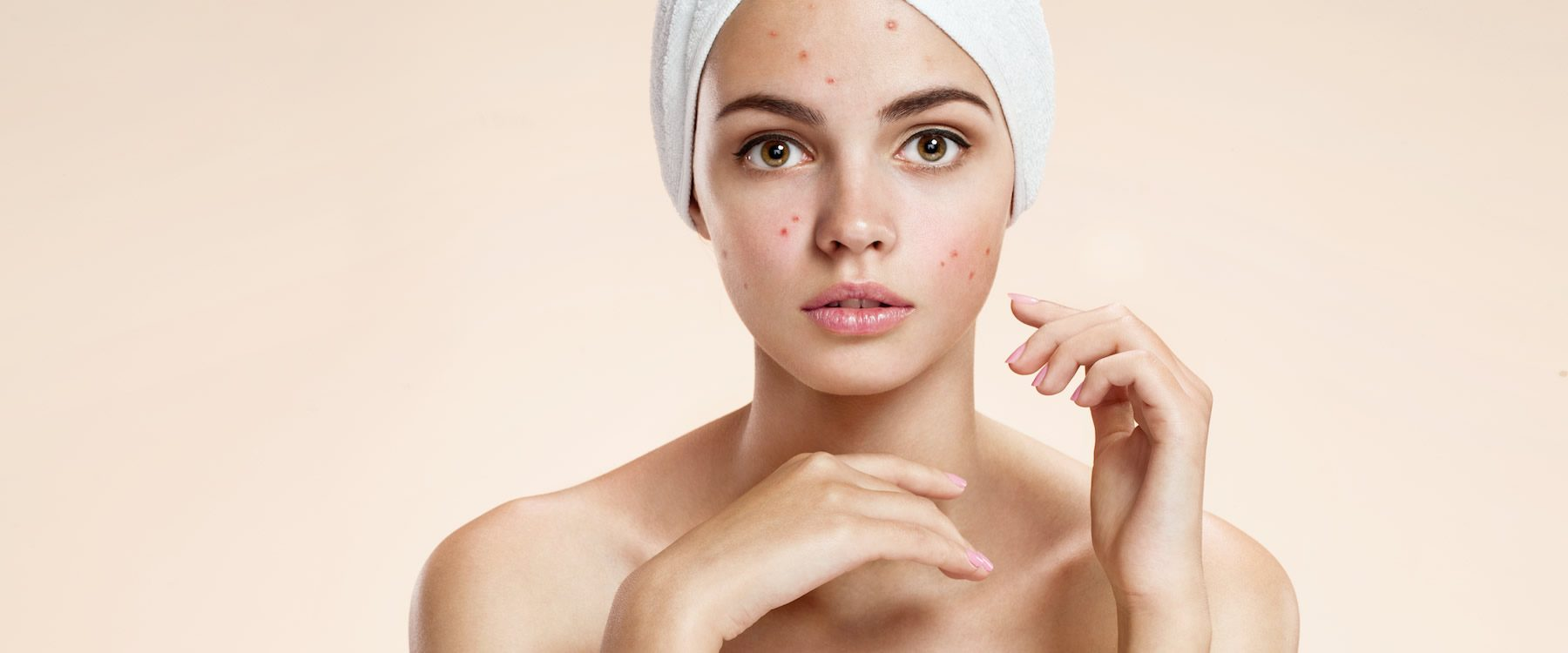 Great Advice On Getting Rid Of Your Acne