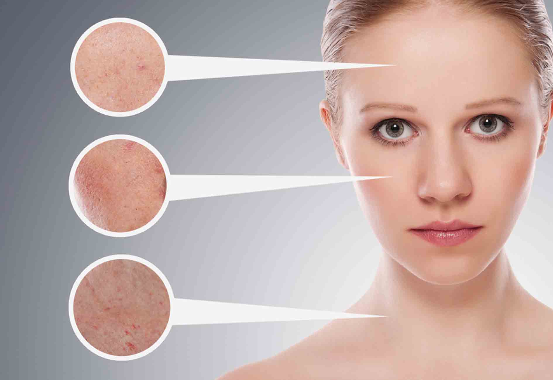 Acne Can Be Managed – Knowledge Is The Key